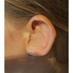 Bouchons d'oreilles anti-eau et anti-bruit | Optique Audition SUIN